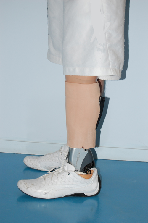 prothesiste amputation Due to the nature of an amputation, there is already an increased pressure on the intact leg, which inevitably ends up taking more load than it is designed for during gait.